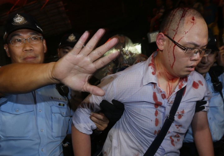 injured-pro-democracy-protester-led-away-by-police-hong-kong-reuters